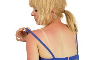 Lato w pełni. Poznaj naturalne, domowe sposoby na poparzenia słoneczne.