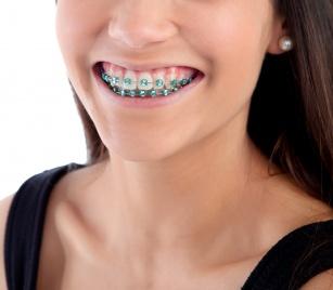 Czyste zęby w aparacie. Sprawdź jak zadbać o higienę jamy ustnej!