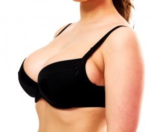 Piękne piersi bez rozstępów - jak tego dokonać?