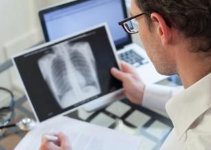 Czym jest przewlekła obturacyjna choroba płuc?