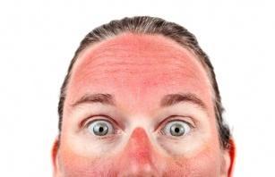 Leki kontra słońce. Sprawdź koniecznie, po których lekach nie należy się opalać.