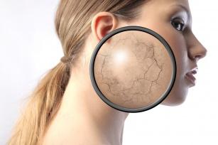 Sucha skóra to duży problem. Sprawdź jak możesz o nią dbać.
