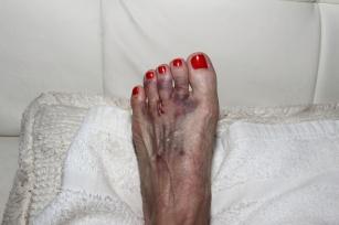Nerwiak Mortona - skutek butów na wysokim obcasie!