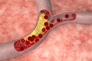 Ból nóg i problemy z koncentracją. Rozpoznaj pierwsze objawy miażdżycy