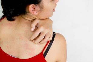 Okropne swędzenie skóry, wysypka, podrażnienie? Sprawdź, czy to nie Atopowe Zapalenie Skóry.