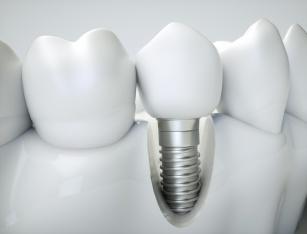 Implanty zębów - rodzaje, trwałość oraz techniki wszczepienia