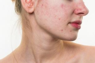 Pajączki, krostki i zaczerwienienia. Objawy i leczenie trądziku różowatego