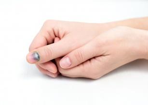 Przebarwienia na paznokciach – co oznaczają?