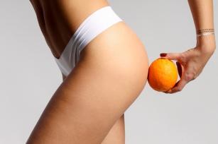 Cellulit - skuteczne sposoby na pozbycie się pomarańczowej skórki