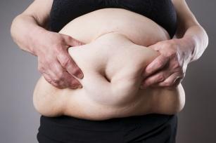 Otyłość brzuszna - problem estetyczny i zdrowotny