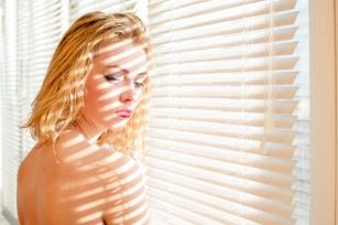 Łupież pstry – przyczyny, objawy i sposoby leczenia łupieżu pstrego na głowie