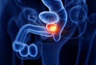 Prostata – co to za organ?