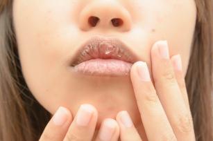 Popękane i spierzchnięte usta -  skuteczne sposoby na regenerację ust