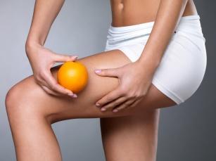 Skąd się bierze cellulit? Odpowiedzi na pytania o pomarańczową skórkę