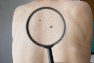 Wakacyjne SOS: Znasz zasadę ABCDE? Pomoc przy ochronie przed rakiem skóry!