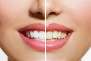 Problem z żółtymi zębami? Chcesz je  wybielić? Masz duży wybór