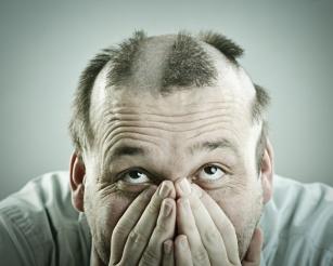 Łysienie androgenowe – jakie leki są skuteczne na wypadanie włosów u mężczyzn?