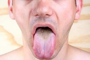 Nalot na języku. Sprawdź, co mówi o twoim zdrowiu!