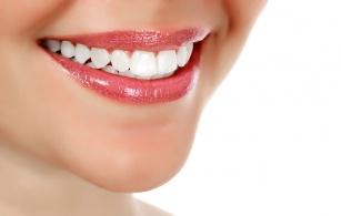Wybielanie zębów - prawdy i mity !