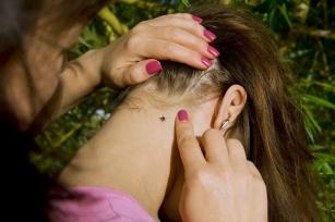Borelioza u dzieci - objawy, etapy rozwój choroby i sposoby leczenia boreliozy