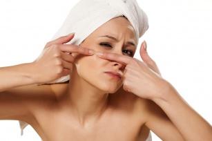 Masz problem z trądzikiem? Poznaj 10 zasad diety przeciw trądzikowi!