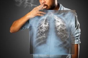 Badania profilaktyczne dla palaczy i eks-palaczy. Zbadaj się, aby wyprzedzić chorobę!