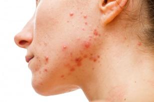 Uczulenie na twarzy – bolączka współczesnych alergików.