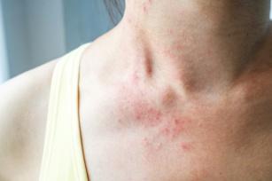 Grzybica skóry gładkiej – objawy, przyczyny, leczenie i zapobieganie nawrotom choroby