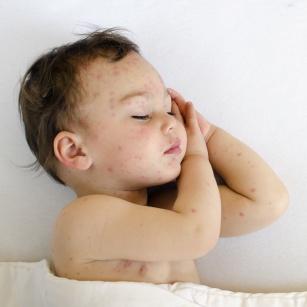 Łojotokowe zapalenie skóry. Jak pielęgnować skórę dziecka?