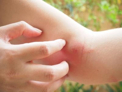 Alergia na jad owadów. Najważniejsze objawy