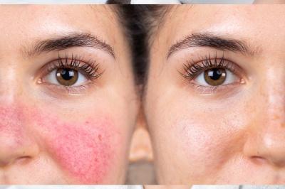 Zamykanie naczynek na twarzy – o czym musisz wiedzieć przed zabiegiem?