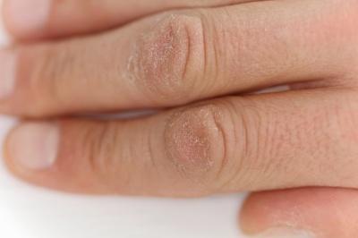 Wyprysk zimowy - co robić kiedy atopowe zapalenie skóry nasila się zimą?