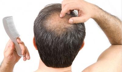 Leczenie łysienia