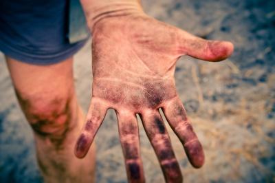 Odciski i brodawki – wstydliwy problem