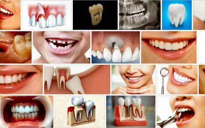 Pożyczka na dentystę
