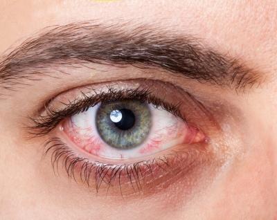 Zapalenie spojówek - najczęściej rozpoznawana choroba okulistyczna. Poznaj przyczyny i metody leczenia!